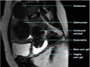 Ressonância Nuclear Magnética: Miomas Uterinos e suas Classificações